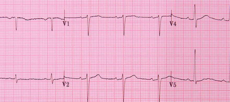 New guideline for diagnosis and treatment of stable angina